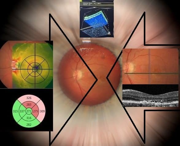 macular degeneraion location